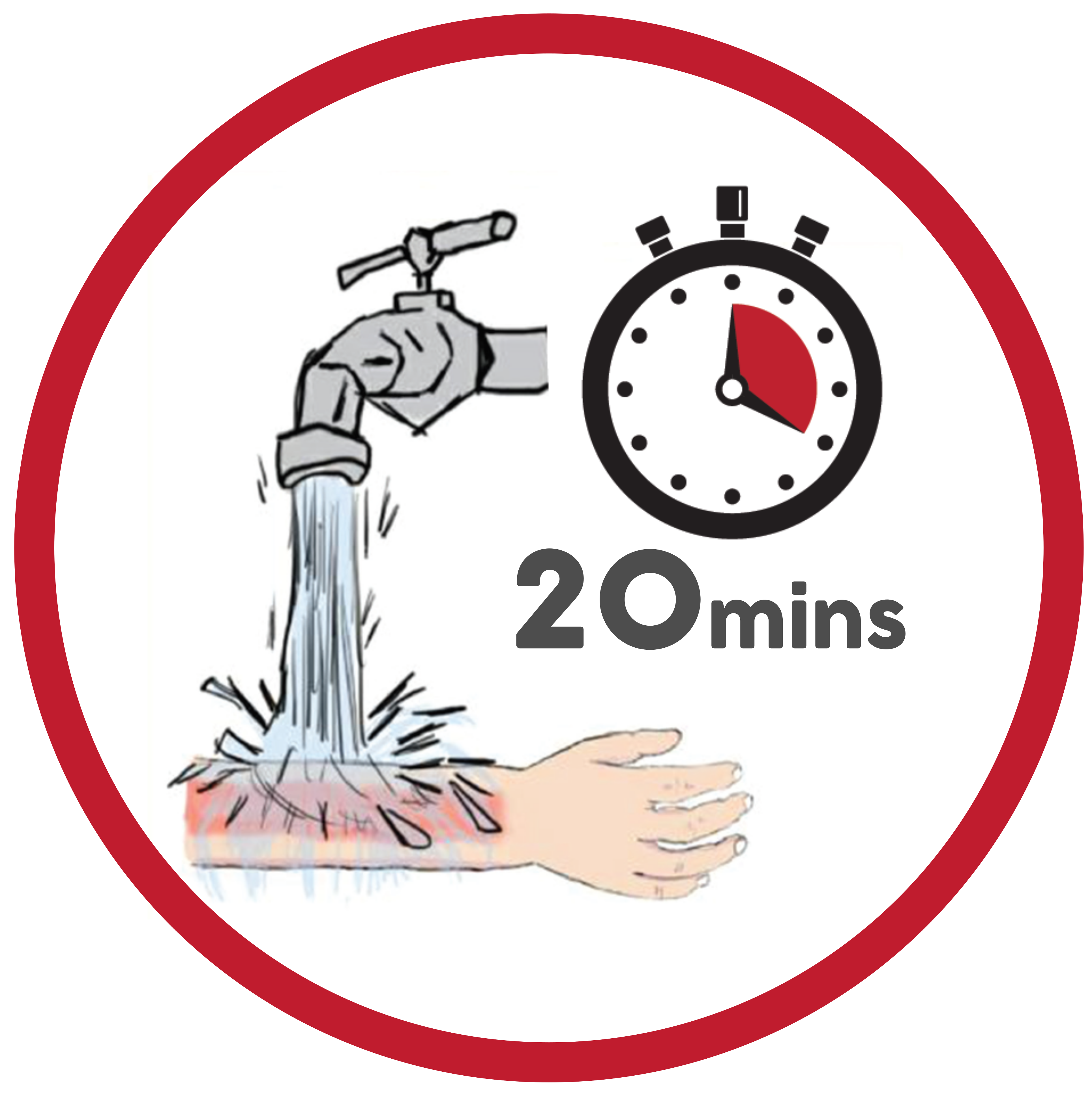 Run cool water on burn for 20 minutes